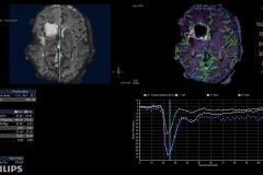 brain-perfusion-1